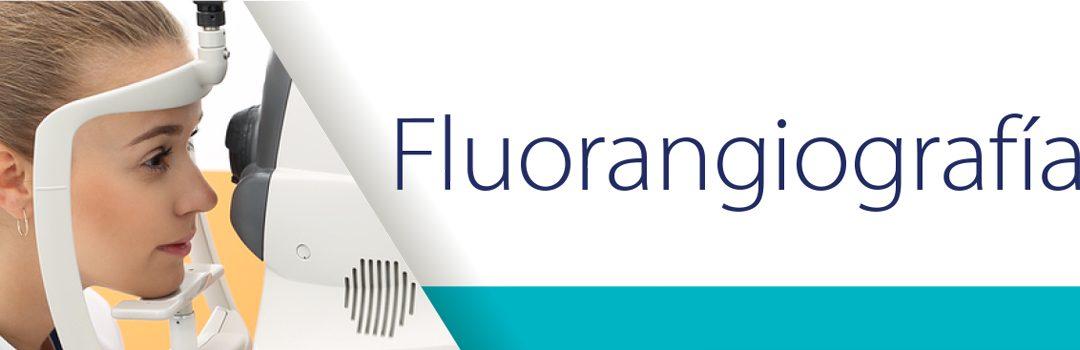 Fluorangiografía