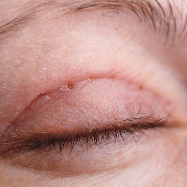 Oculoplastia